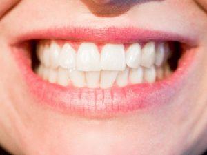 esztétikai fogászati kezelések